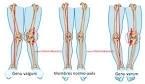 genoux valgum-varum et osteo (1)